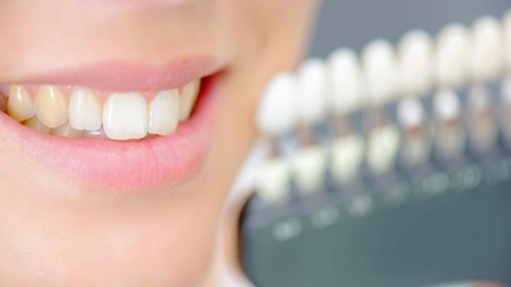 Почему зубы меняют цвет, и как с этим бороться