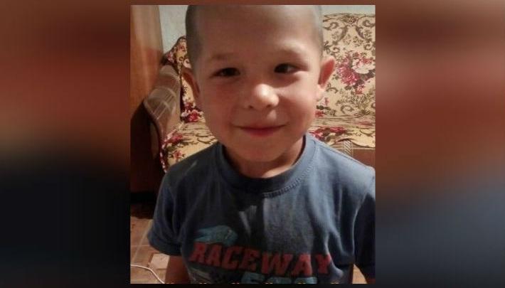 Обожжено 35 процентов тела: пятилетнему мальчику из Башкирии срочно требуется помощь