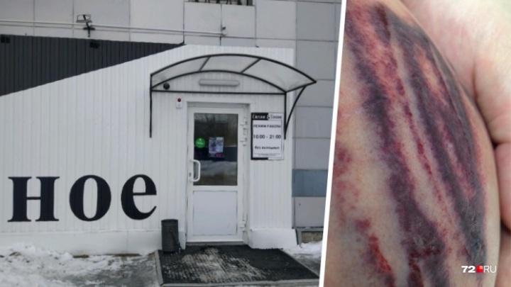 Трудовая инспекция проверит магазин, где тюменка получила травму груди и живота из-за взрыва кега