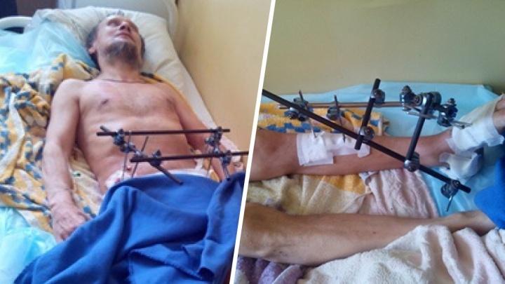 «В пути ему стало плохо»: в Перми на суд повезли лежачего больного с переломами голени, груди и таза