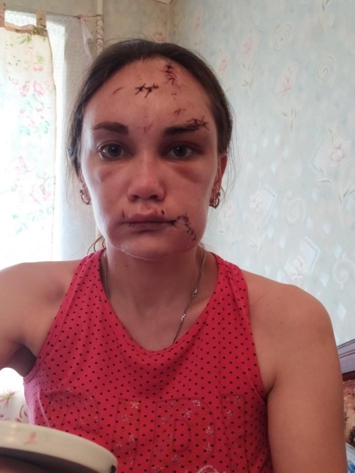 Ирина после побоев