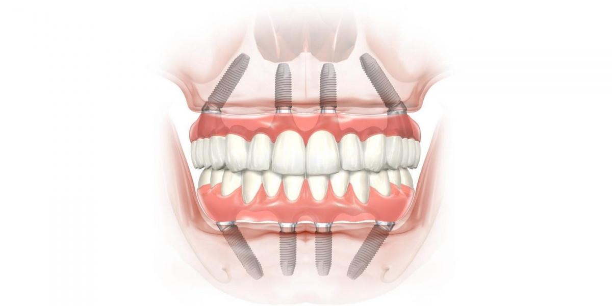 Когда спасать уже нечего: как вернуть потерянные зубы за один день и сэкономить 37 000 рублей