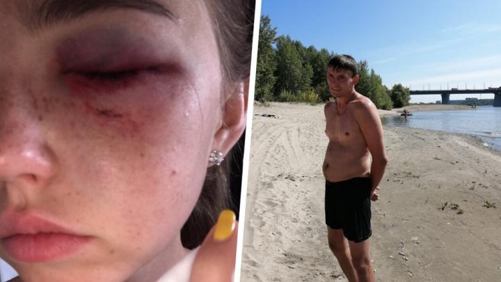 Отдыхающий на пляже ударил девушку после неудачной попытки познакомиться