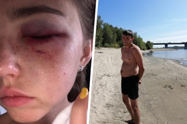 Мужчине не понравился отказ в знакомстве, после чего он решил ударить одну из девушек
