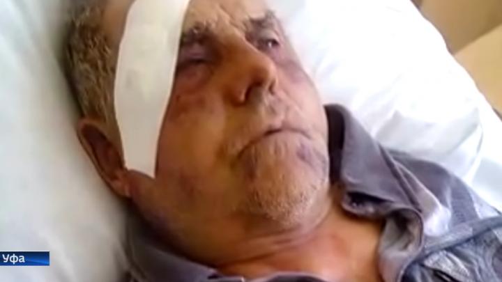 Избитый в уфимском санатории пенсионер в деталях запомнил нападавшего