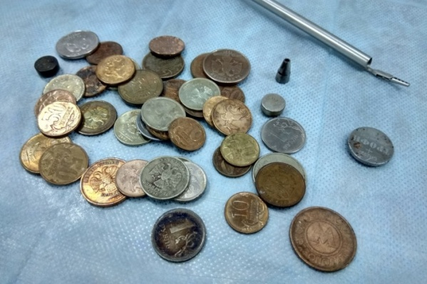 Очень часто малыши берут в рот именно монетки, которые взрослые оставляют без присмотра. Этот снимок был сделан в прошлом году врачами, которые доставали из желудков тюменцев данные монеты