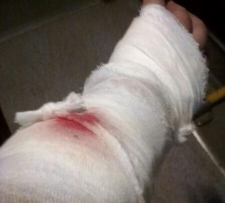 В Уфе на прохожих напала овчарка: мужчине пришлось вызывать скорую помощь