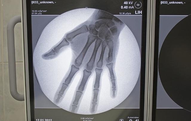Магнитогорского травматолога, проводившую подпольные операции по откачке жира, отправили в колонию