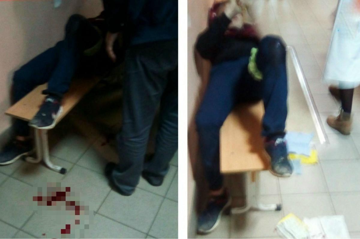 Нападавший целился в живот, но попал в ногу