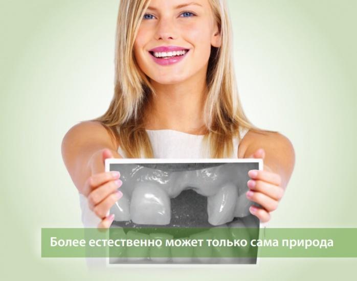 Новосибирцам предложили восстановить отсутствующие зубы за один прием
