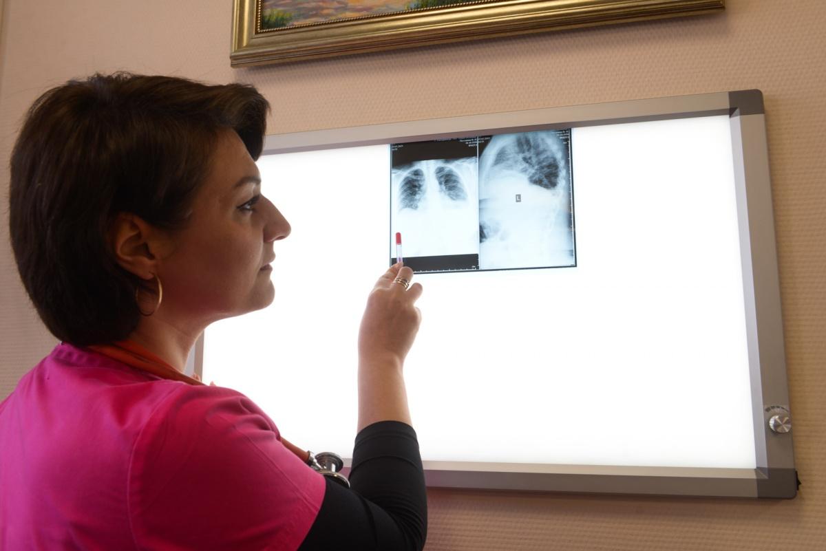 Затянувшийся после простуды кашель может привести к бронхиальной астме