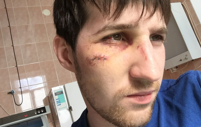 Трое на одного: в Башкирии мужчины зверски избили хирурга