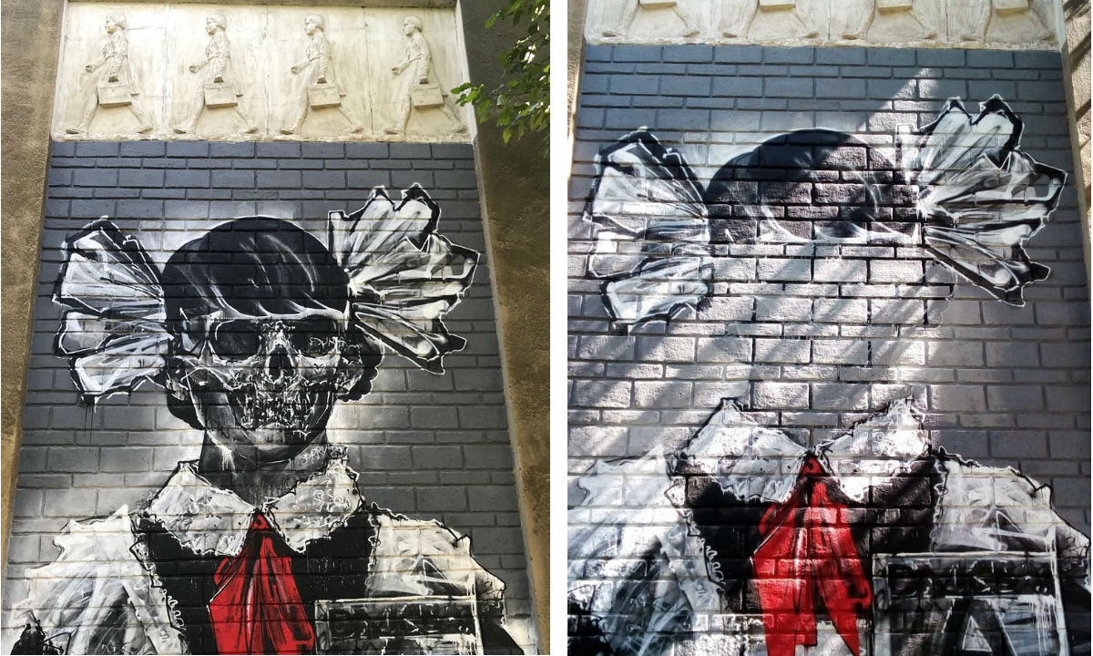 Девочка-скелет до и после