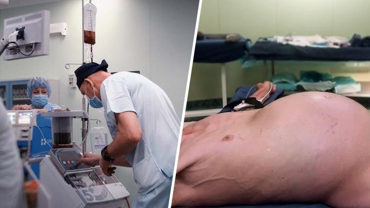 Московские хирурги удалили пациенту из Самарской области опухоль весом 20 килограмм