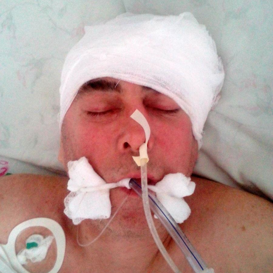 Полицейские просят омичей посодействовать установить личность мужчины сразбитой головой
