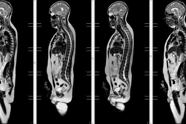 Онкоскрининг — это профилактическое МРТ всего тела пациента, пришедшего на обследование без каких-либо симптомов