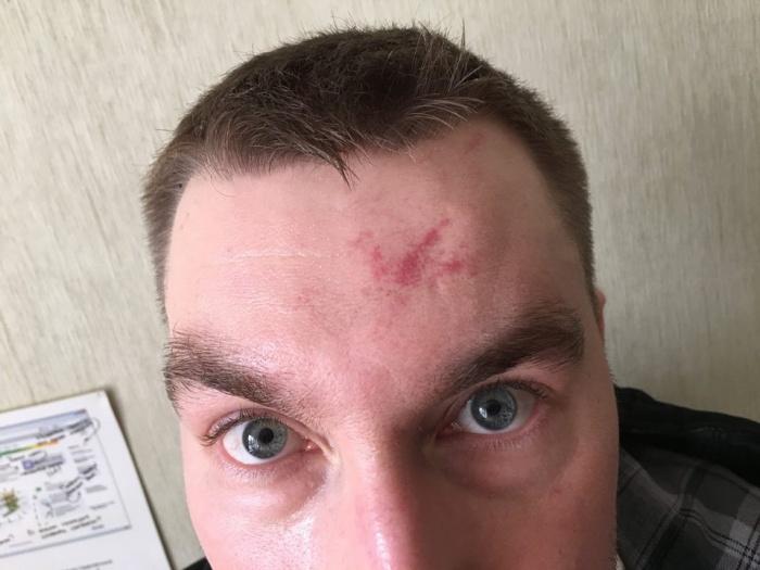 После нападения Дмитрий Калинин выложил свои фото в соцсети