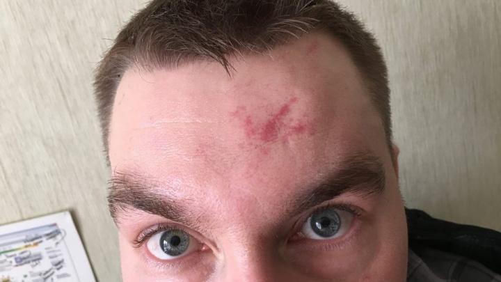 «Один худой и хромой»: прохожий разглядел напавших на общественника в Екатеринбурге