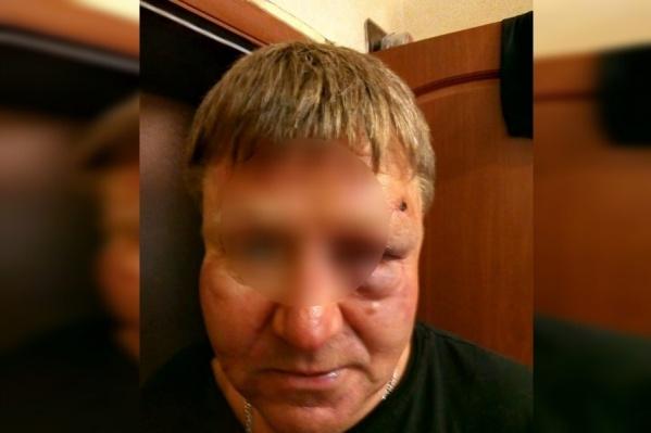 У мужчины опухло лицо из-за побоев<br><br>