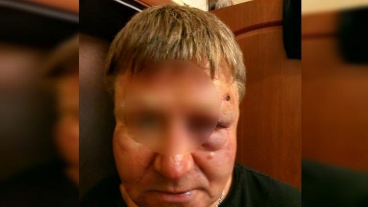 Мужчина избил водителя машины, из-под колес которой в его стекло прилетел камень