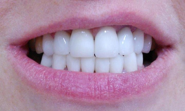 Идеальные зубы на всю жизнь: белые, крепкие, без пломб | НГС - новости  Новосибирска