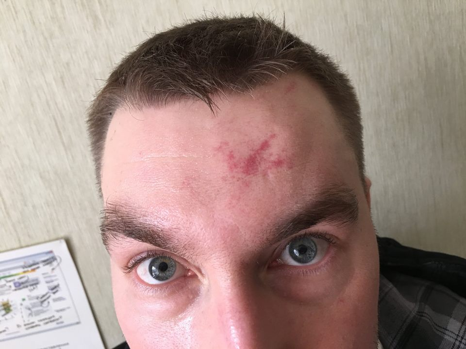 ВЕкатеринбурге совершено нападение на основного редактора «Областной газеты»