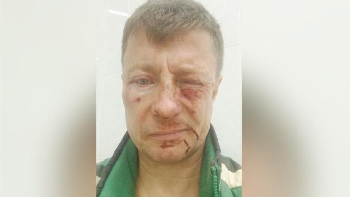 «Схватил за шею, давил на кадык»: в Екатеринбурге жители дома напали на управляющего ТСЖ