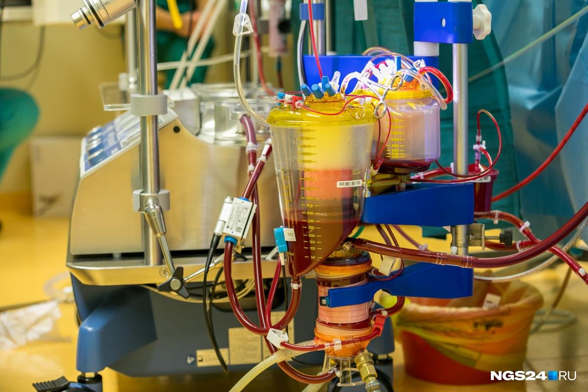 транспортное средство картинки аппарата искусственного кровообращения пресс-служба певца