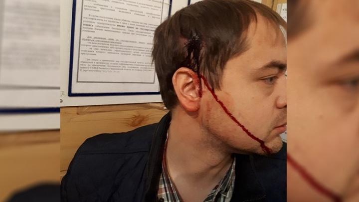 """""""Ударили по голове железной трубой"""": на ЖБИ бандиты избили автомобилиста"""