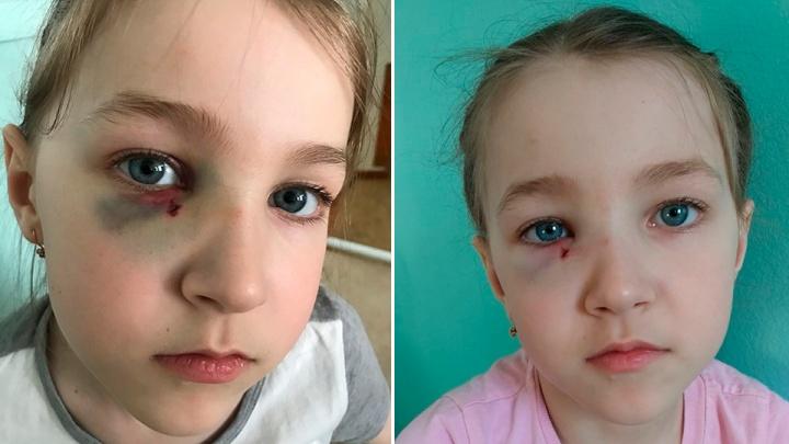 Синяк на пол-лица и перелом носа: после побоев палкой девочка боится ходить в детсад в Башкирии