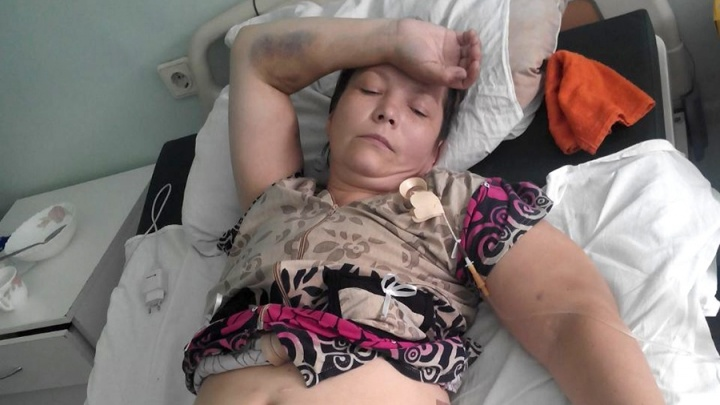 Врача отдали под суд за операцию, после которой у сибирячки отказали почки
