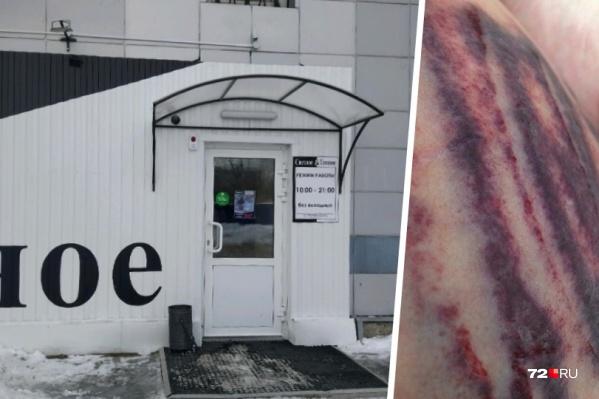 Тюменка работала продавцом-кассиром в магазине&nbsp;«Светлое &amp; Темное» на Полевой, 107. В результате взрыва кеги она получила травму груди и живота<br>