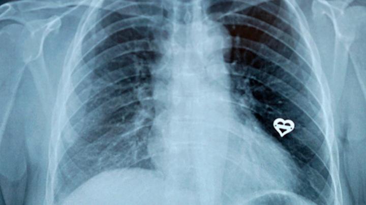 За что в медицине платят, а за что — нет: памятка от Минздрава в инфографике
