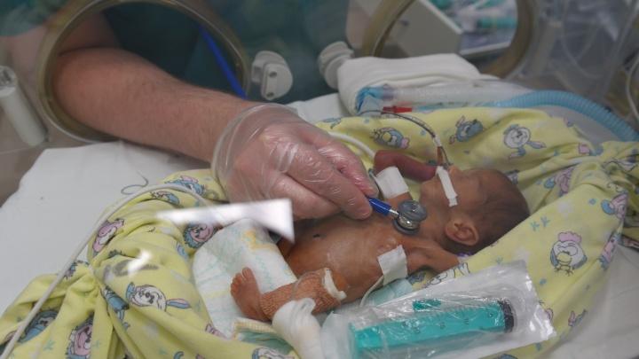 В Екатеринбурге провели уникальную операцию младенцу весом всего 530 грамм
