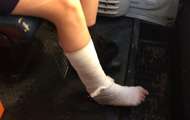В Уфе 11-летняя девочка по дороге в школу поскользнулась и сломала ногу