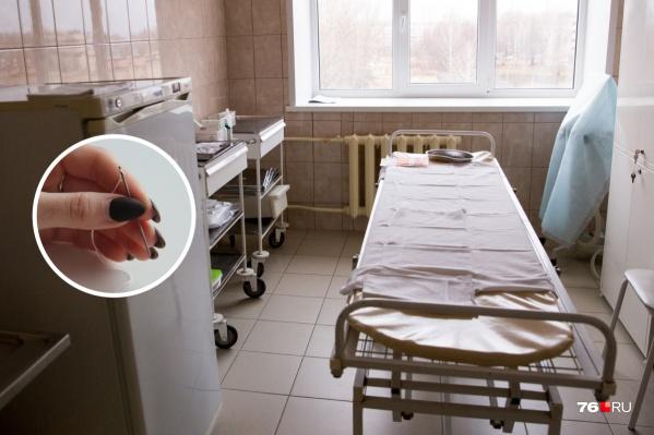Ярославец после операции четыре года проходил с иголкой в животе