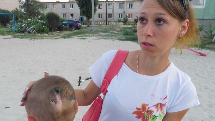 «Мама, я буду жить?». В Волгограде бродячий пес-рецидивист порвал восьмилетнего мальчика