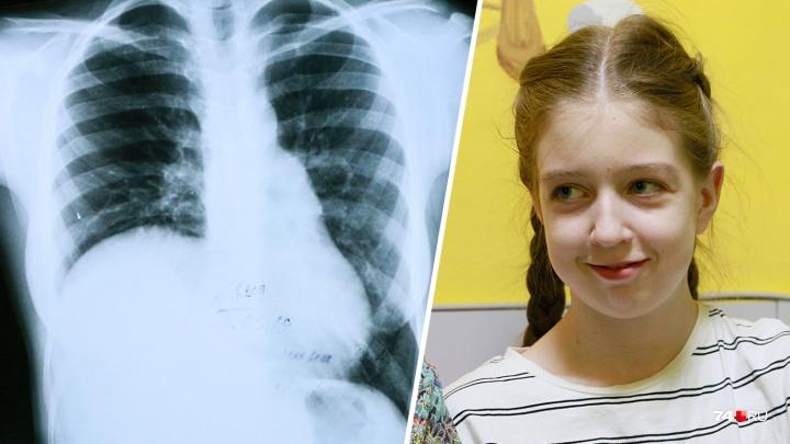 «Печень ушла в грудную клетку»: челябинские хирурги прооперировали школьницу с редкой патологией