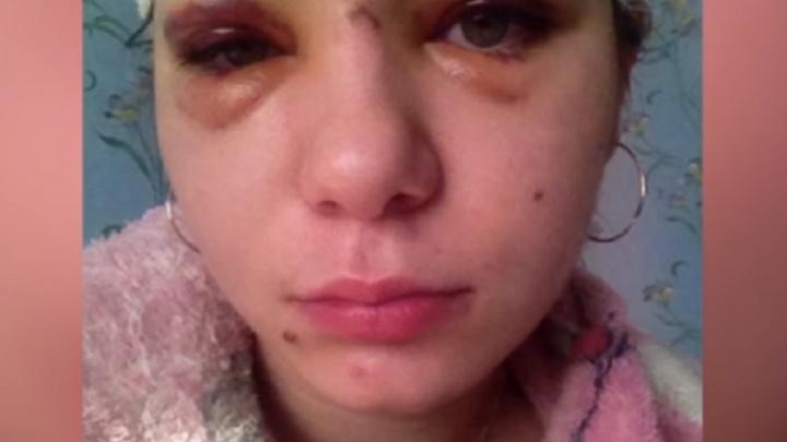В Башкирии на голову студентки с восьмого этажа упала дверца от шкафа