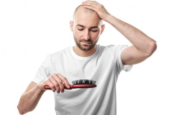 С облысением может столкнуться каждый, но современные методы борьбы с потерей волос помогают вернуть привлекательный внешний вид