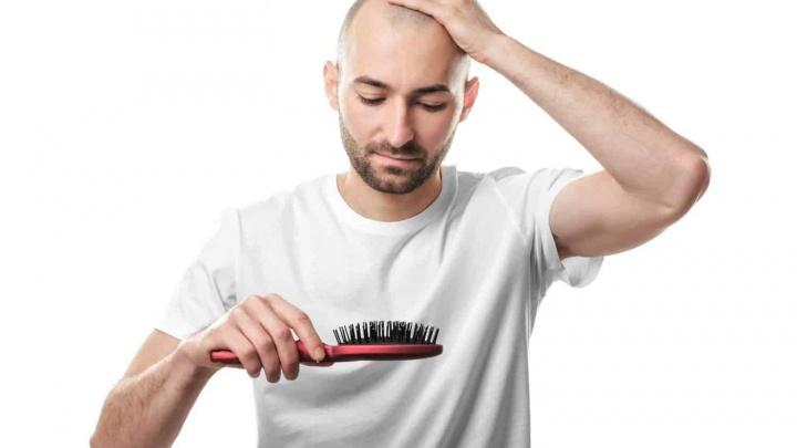 Темпераментные мужчины быстрее лысеют, но теперь восстановить волосы можно в Новосибирске