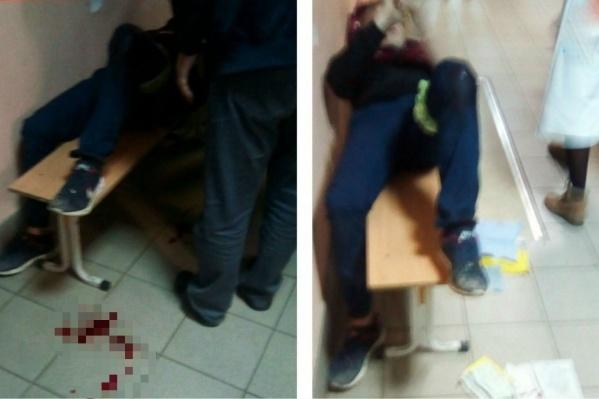 Молодого человека ранили в ногу