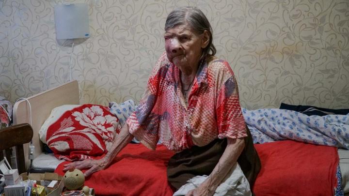 «Она может задохнуться». Почему врачи не приняли пенсионерку с опухолью на пол-лица и так ли это?