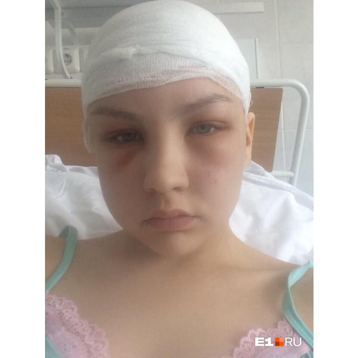 Настя вспоминает: «Кто-то из местных медиков отмахивался, будто я с похмелья. А у меня лицо опухло после ушиба»