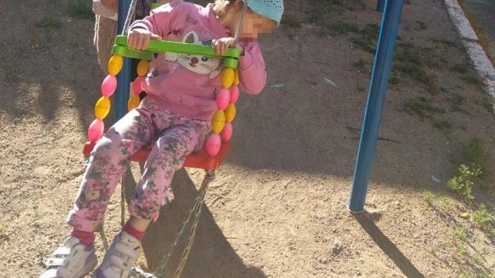 Пытались скрыть: в детдоме Челябинска при странных обстоятельствах получила ожоги трёхлетняя девочка