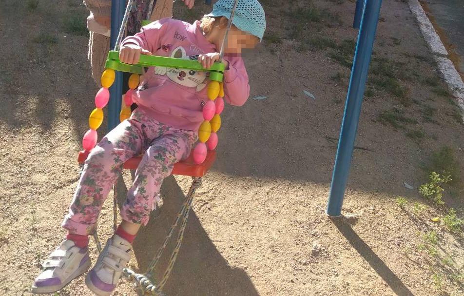 Малышка, ожоги которой пытались скрыть в детдоме, не умеет ни ходить, ни говорить