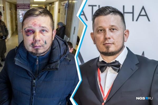 Андрею Радаеву досталось сильно: синяки и кровоподтеки не только на лице, но и на теле