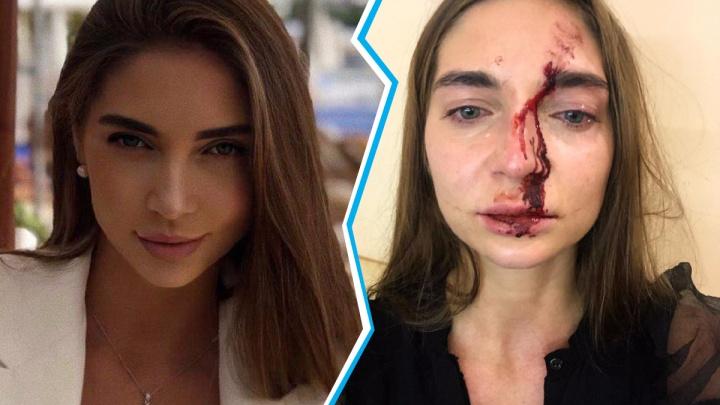 Сибирячка сцепилась с косметологом: одна разбила в кровь лицо, другая попала на сохранение