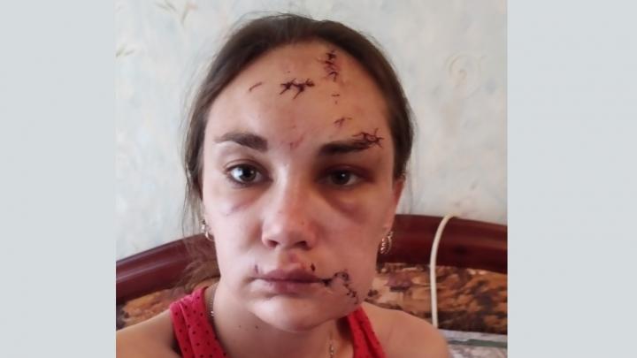«Он меня изуродовал горлышком бутылки»: в Волгоградской области женщина обвинила экс-мужа в насилии