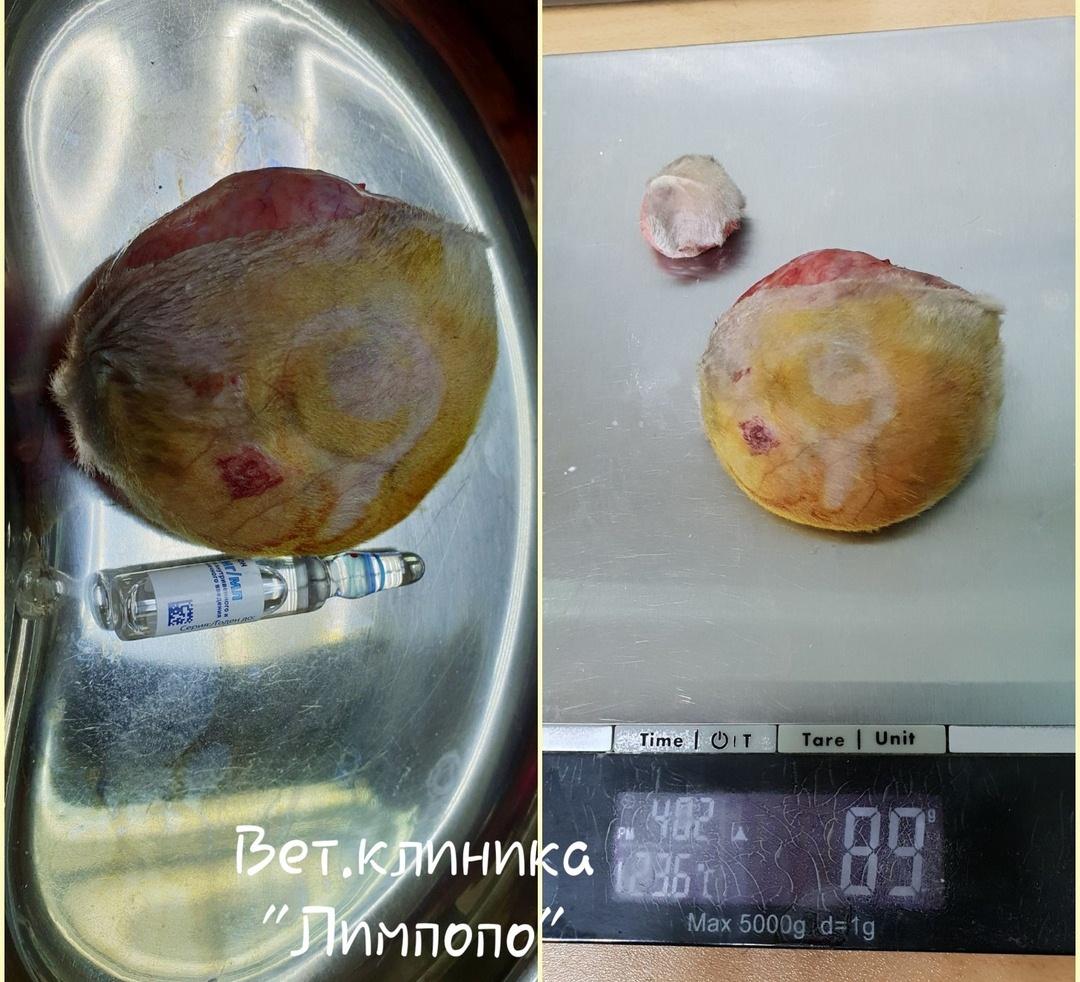 Одна из опухолей была размером с небольшое яблоко